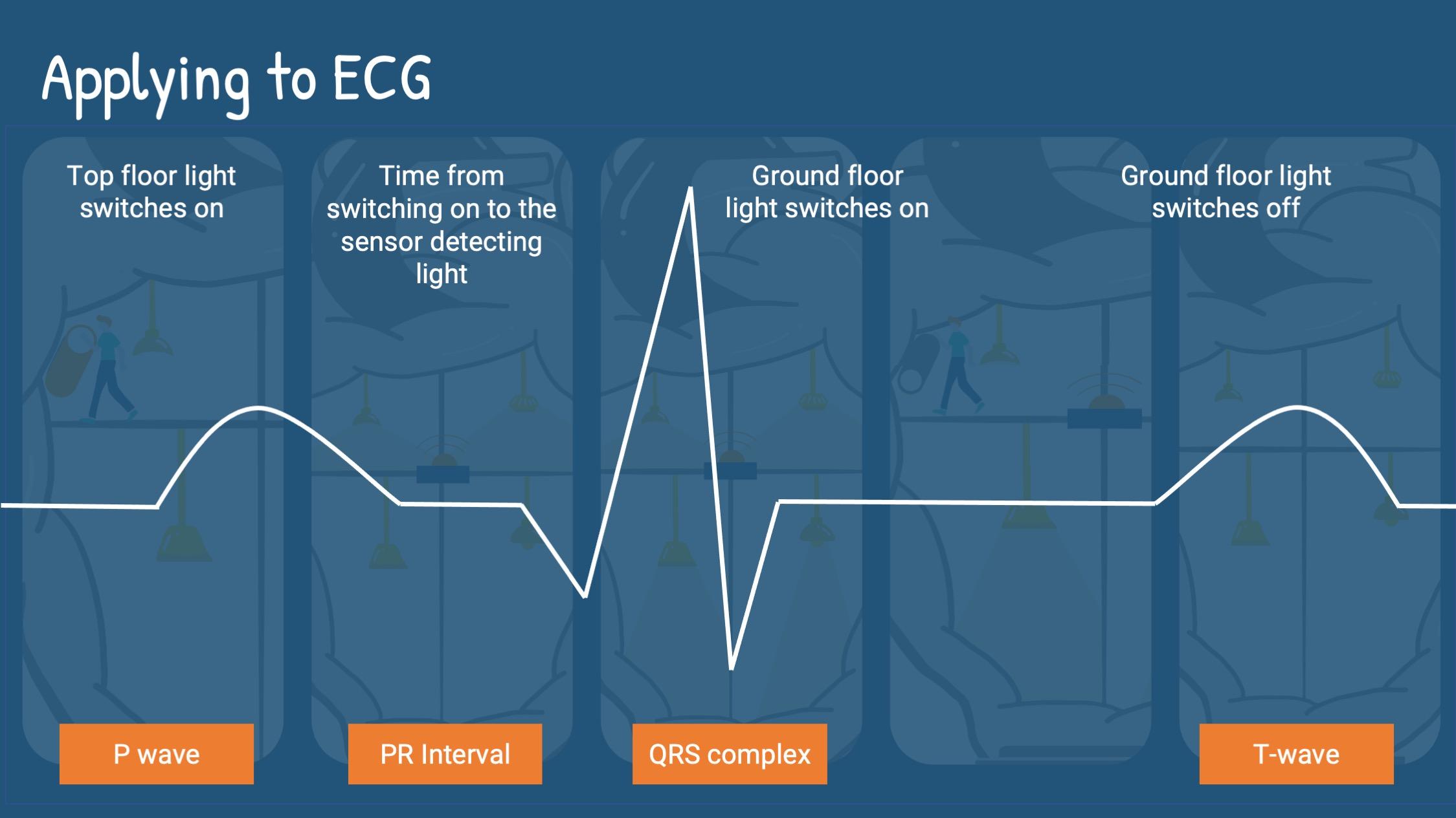 applying to ECG analogy